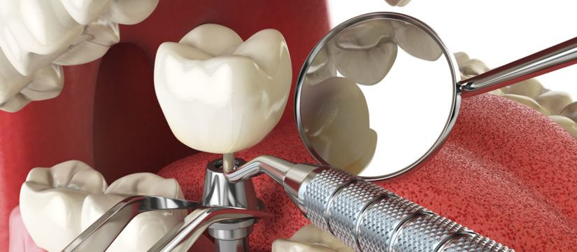 Cat dureaza un implant dentar2